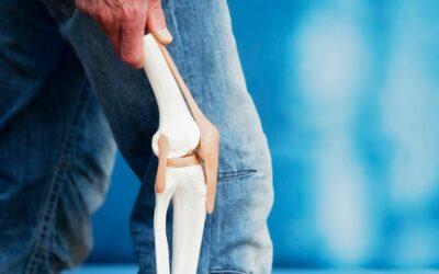 Artrosis de rodilla. ¿Qué es? ¿Tiene tratamiento?