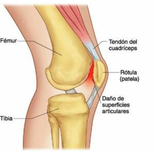 artrosis_rodilla