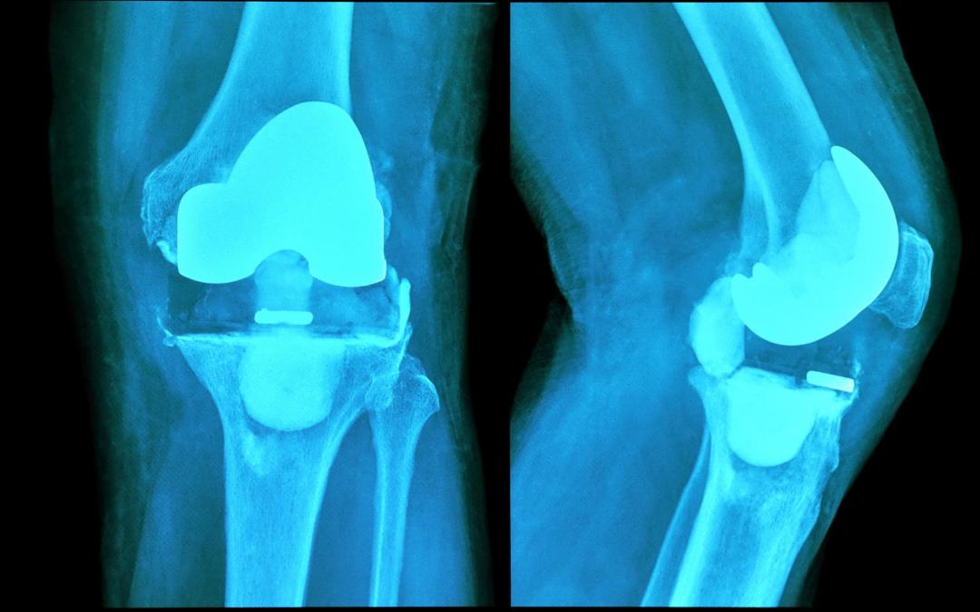 ¿Te acaban de operar de una prótesis de rodilla? ¿Estás a la espera de la intervención?
